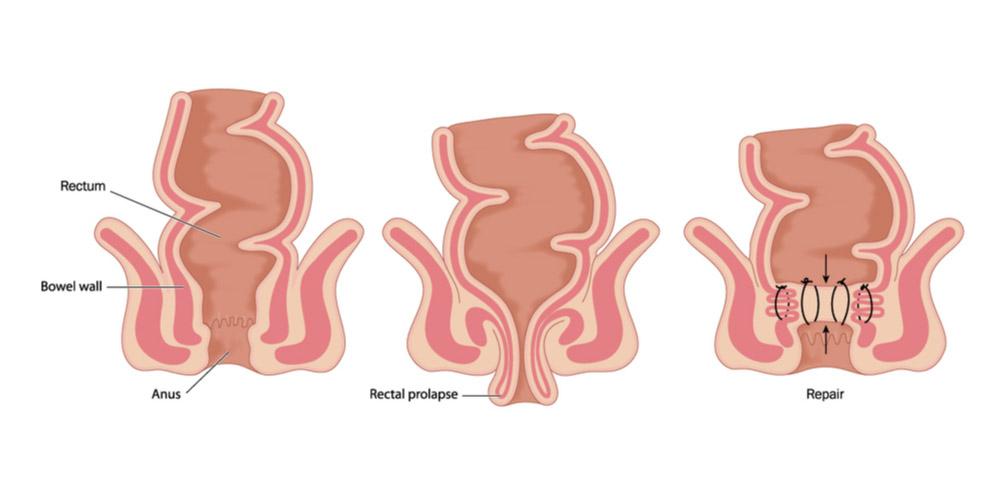 Rectal Prolapse