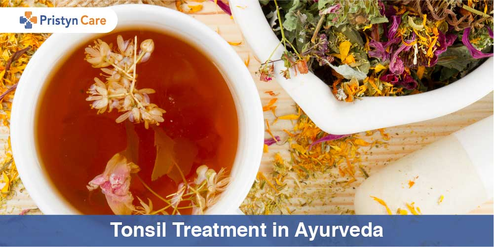 Tonsil treatment in Ayurveda