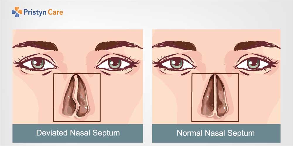 deviated septum vs nasal septum