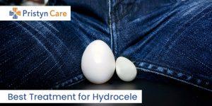 Hydrocele