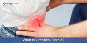 what is umbilical hernia