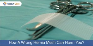 wrong mesh can be harmful