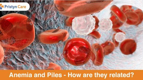 Anemia and piles - how are they related