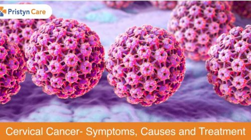 Cervical Cancer- Causes, Symptoms and treatments