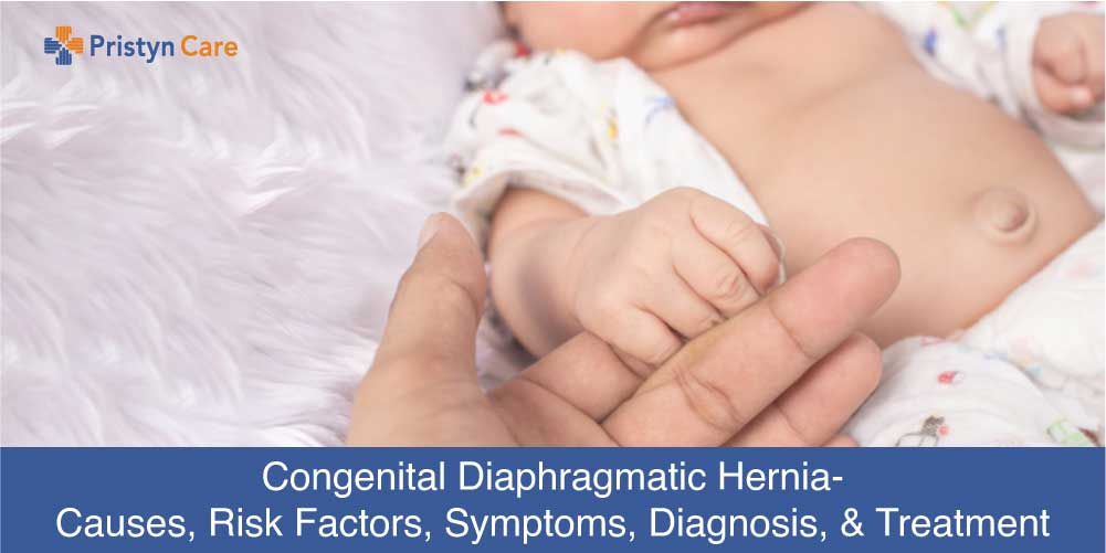 Cover image for Diaphragmatic Hernia