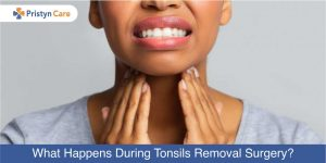 Cover image for To Cure Tonsils Fast