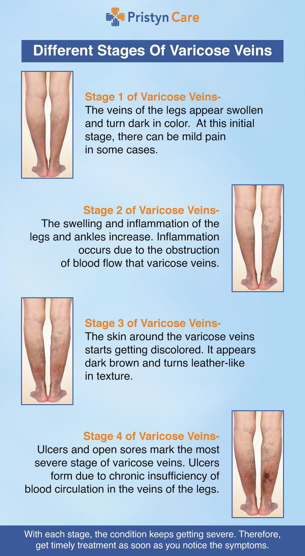 Different stages of varicose veins
