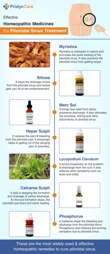 How Effective Is Homeopathy In Pilonidal Sinus Treatment