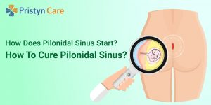 How does pilonidal sinus start