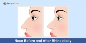 Nose Before and After Rhinoplasty