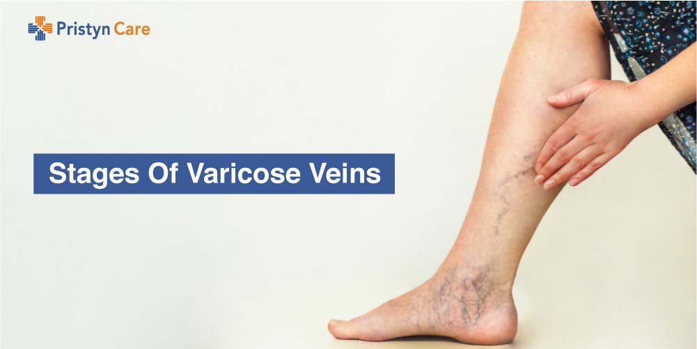 Stages of Varicose veins