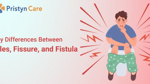 difference between piles, fissure and fistula