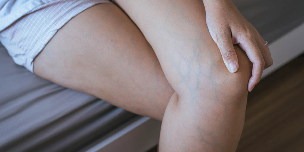 early symptoms of varicose veins
