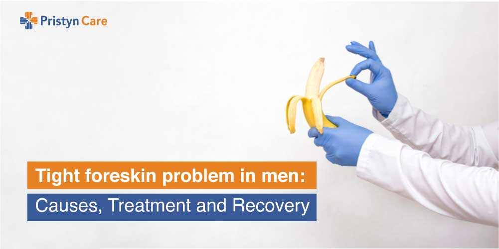 tight-foreskin-problem-in-men-causes-treatment-and-recovery