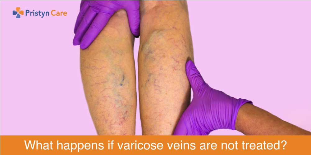 what happens if you leave varicose veins untreated