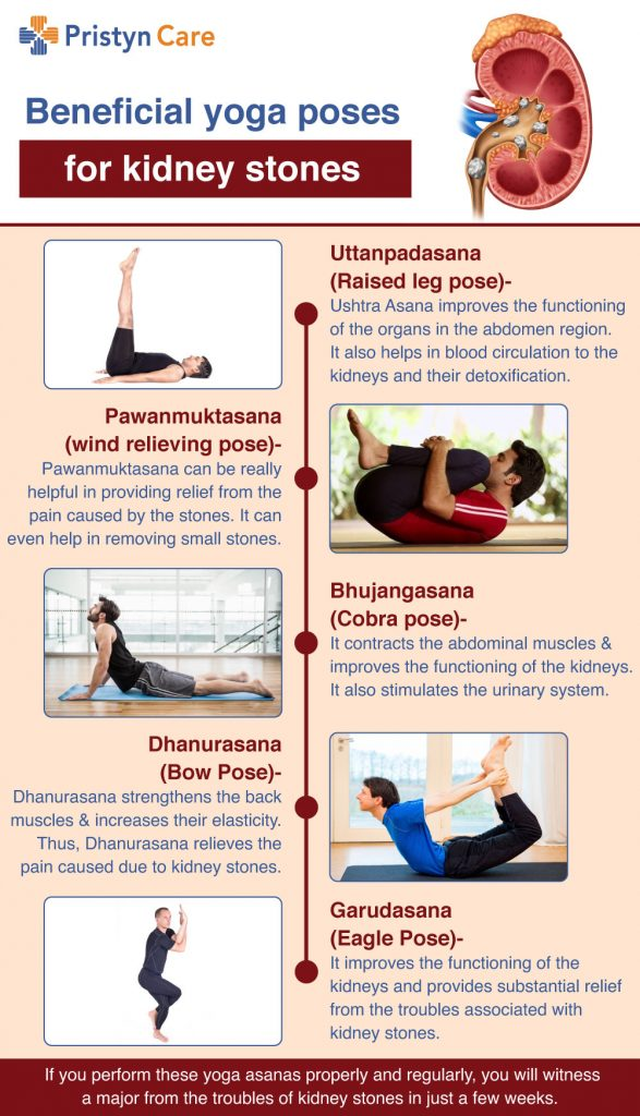 Beneficial-yoga-poses-for-kidney-stones