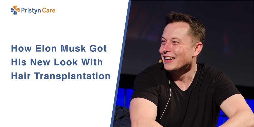 Elon Musk Hair Transplantation