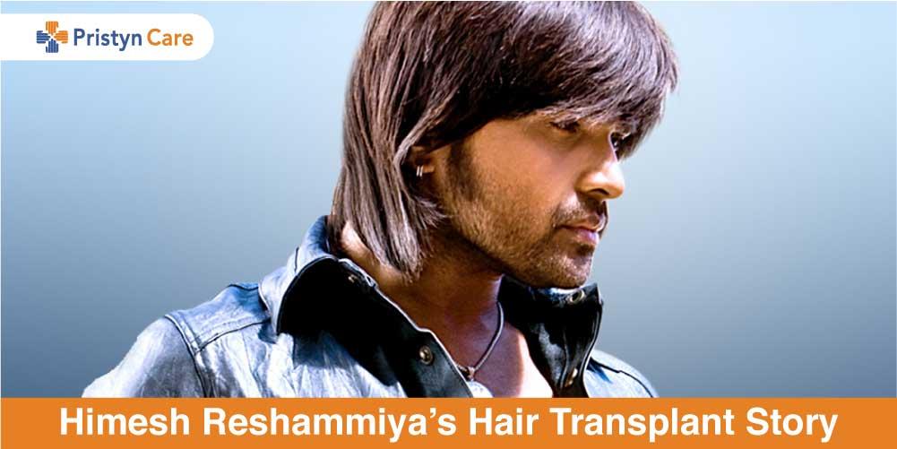 Himesh Reshammiya's Hair Transplantion