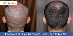 Hair Transplantation Before & After Results