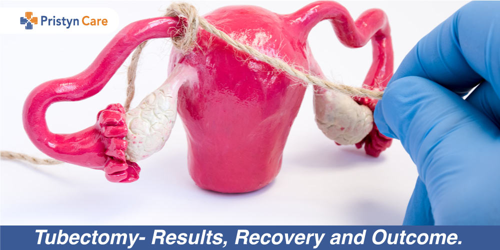 Tubectomy- Results, Recovery and Outcome.