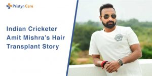 New look of Amit Mishra after Hair Transplantation