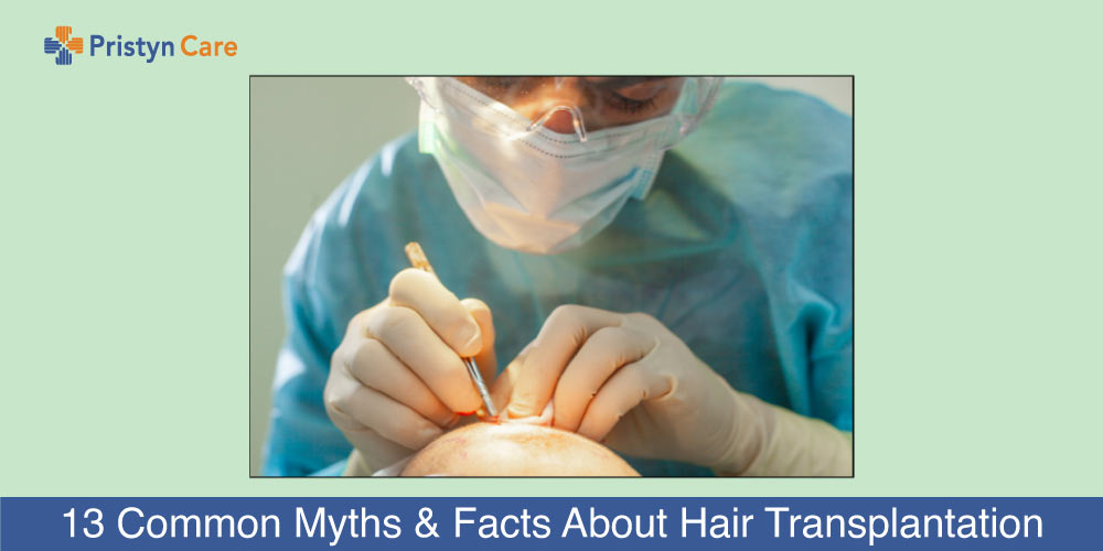 Myths and Facts about Hair Transplantation