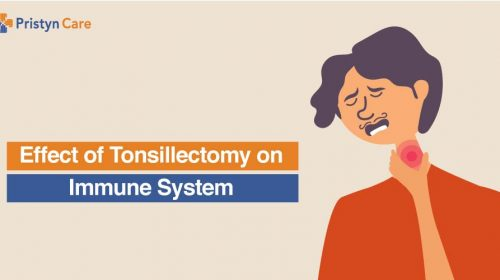 Effects of Tonsillectomy on Immune System