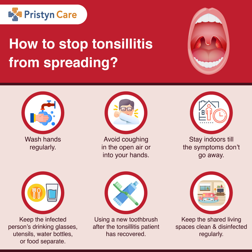 How-to-stop-tonsillitis-from-spreading