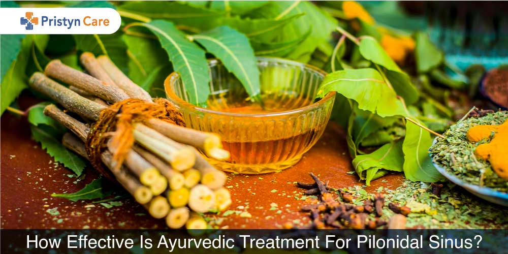 ayurvedic treatment for pilonidal sinus