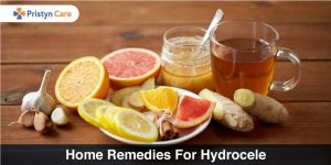 home remedies for hydrocele