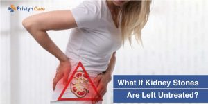 if kidney stones are left untreated