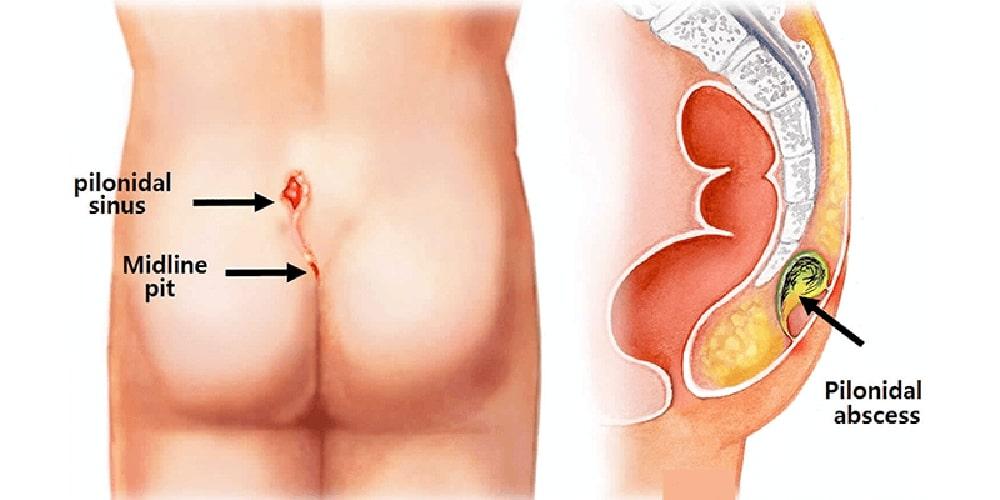 pilonidal cyst image