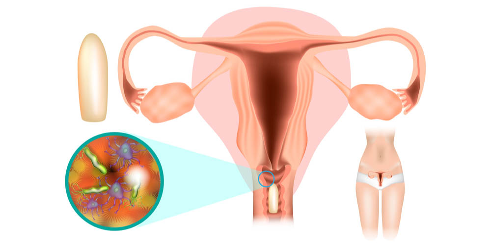 diagram showing vaginal suppository or vaginal capsule in the vagina