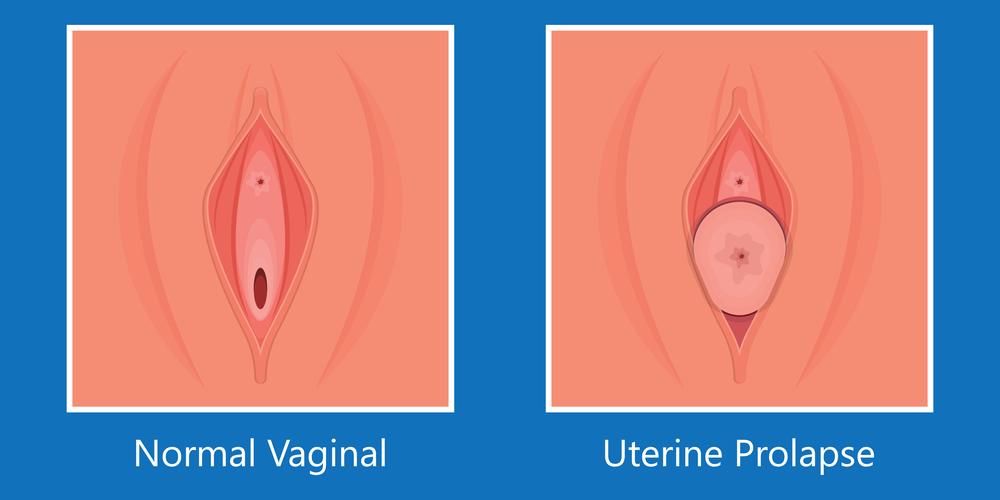 Mild Vaginal Prolapse