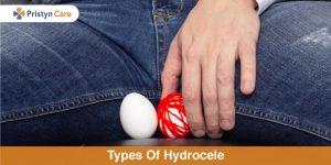 types of hydrocele
