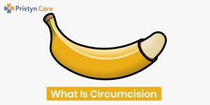 what is circumcision