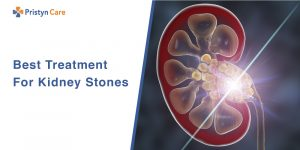 Best-Treatment-For-Kidney-Stones