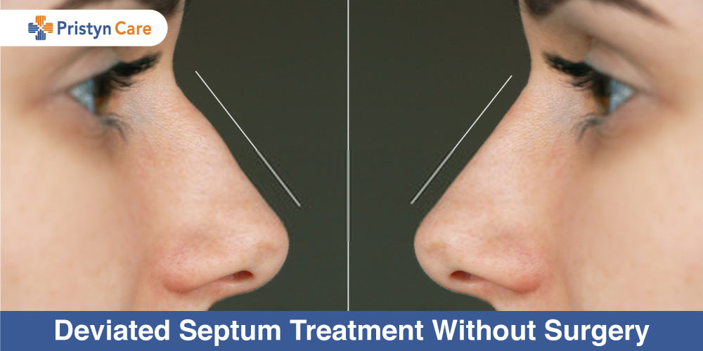 Deviated-Septum-Treatment-Without-Surgery