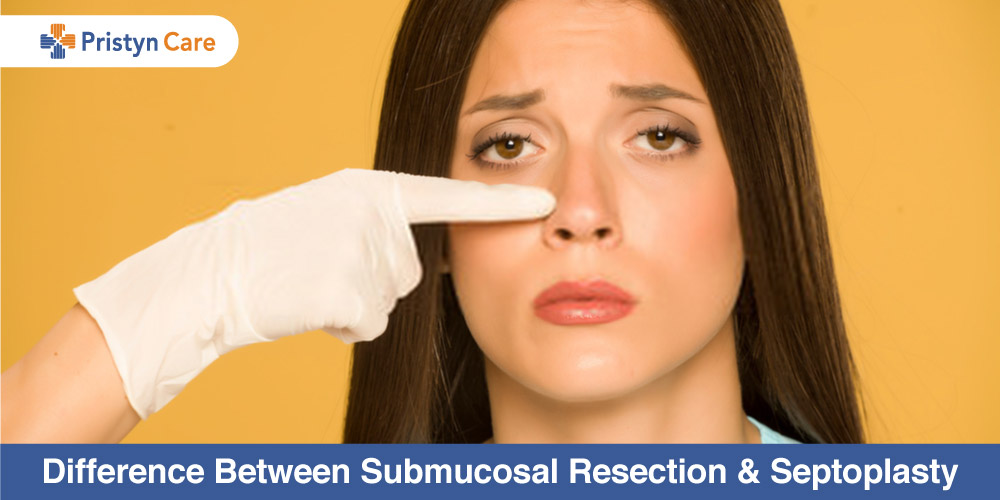 Difference-Between-Submucosal-Resection-and-Septoplasty
