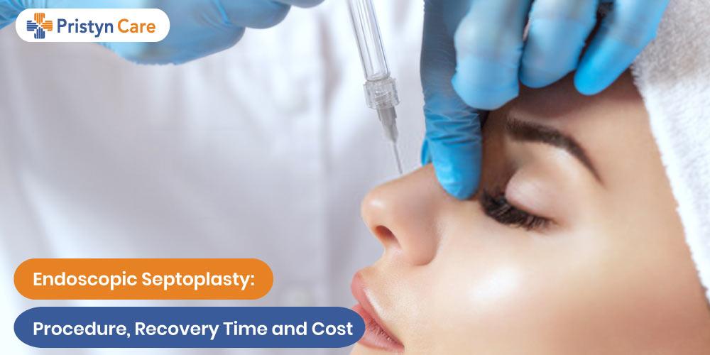 Endoscopic Septoplasty