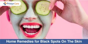 Home-Remedies-for-Black-Spots-On-The-Skin