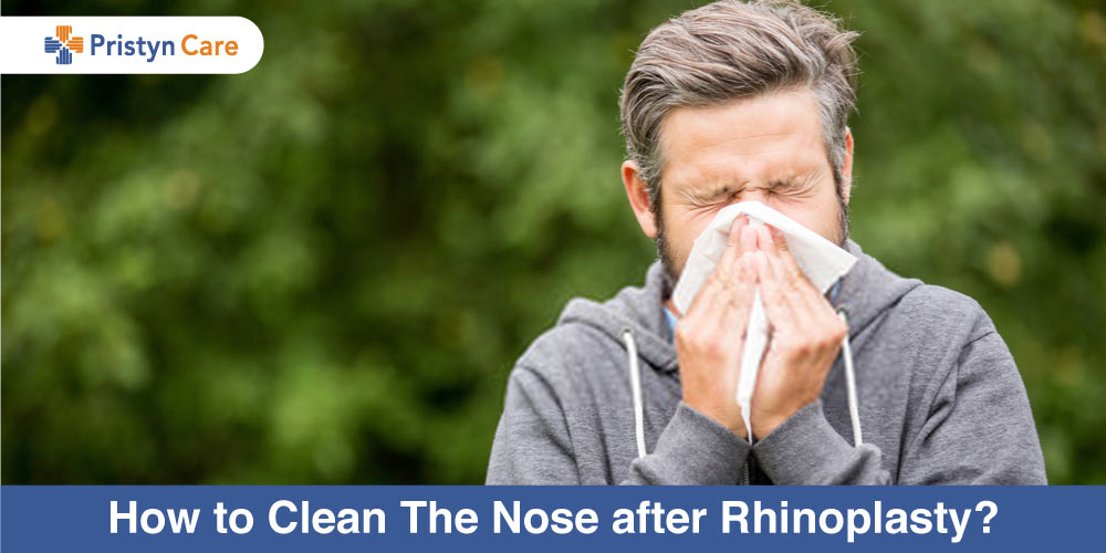 How-to-Clean-The-Nose-after-Rhinoplasty