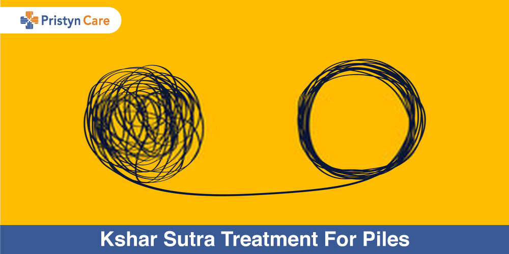 Kshar Sutra Treatment for Piles