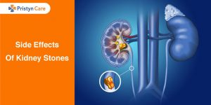 Side-Effects-Of-Kidney-Stones