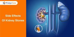 Side-Effects-Of-Kidney-Stones