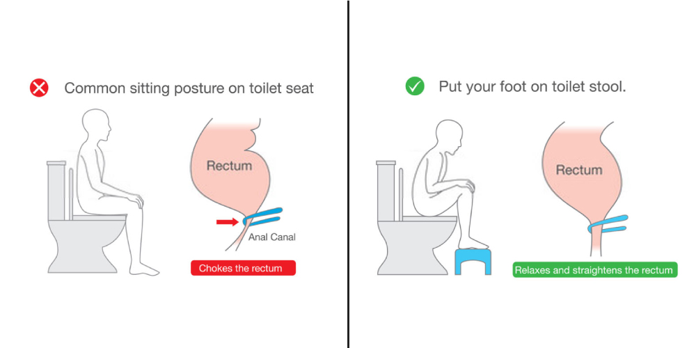 Squatting while defecation