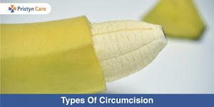 Types-Of-Circumcision