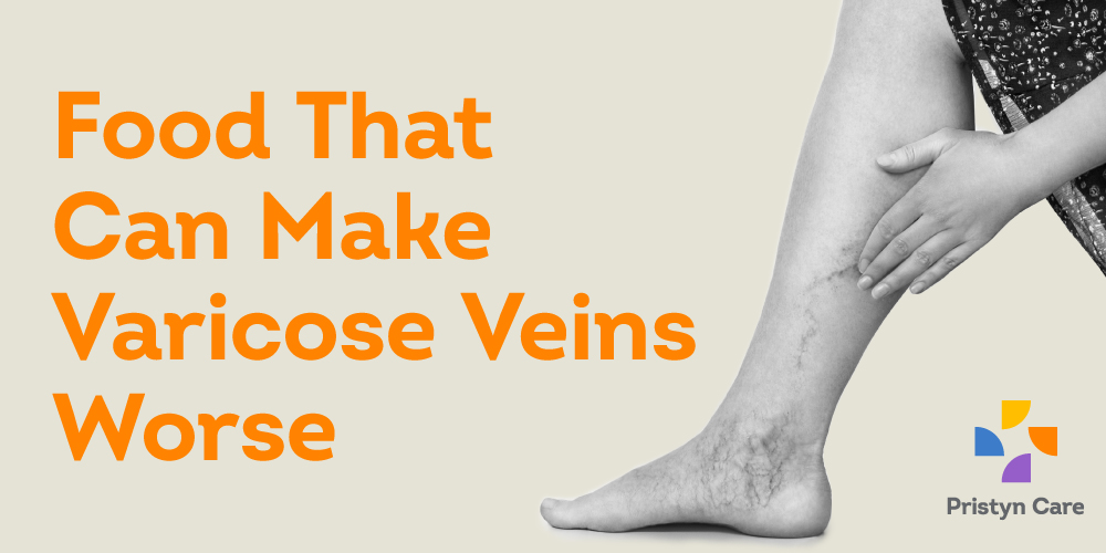 food that can make varicose veins worse