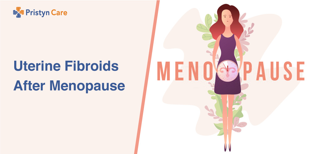 Uterine-Fibroids-After-Menopause