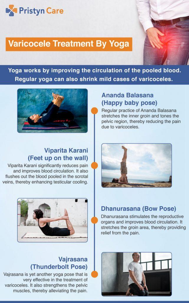 yoga vs varicoză exercițiu